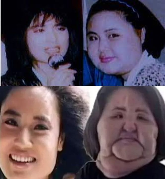 Hang Mioku before and after multiple plastic surgery procedures.