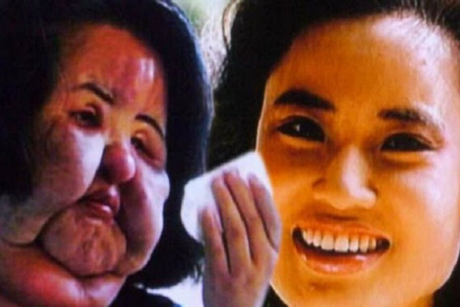 Hang Mioku's Plastic Surgery - The Untold Truth!
