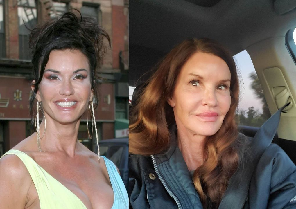 Janice Dickinson before and after plastic surgery.