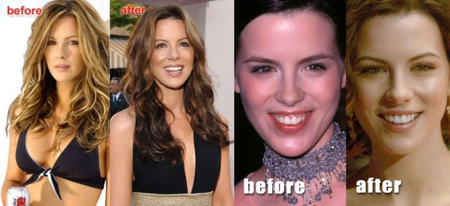 Kate Beckinsale before and after plastic surgery.