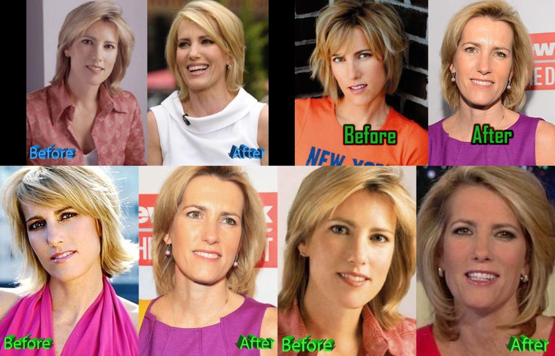 Laura Ingraham before and after plastic surgery.
