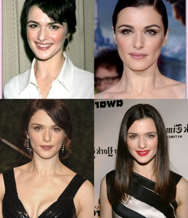 Rachel Weisz before and after alleged plastic surgery procedures, notably Botox injections.