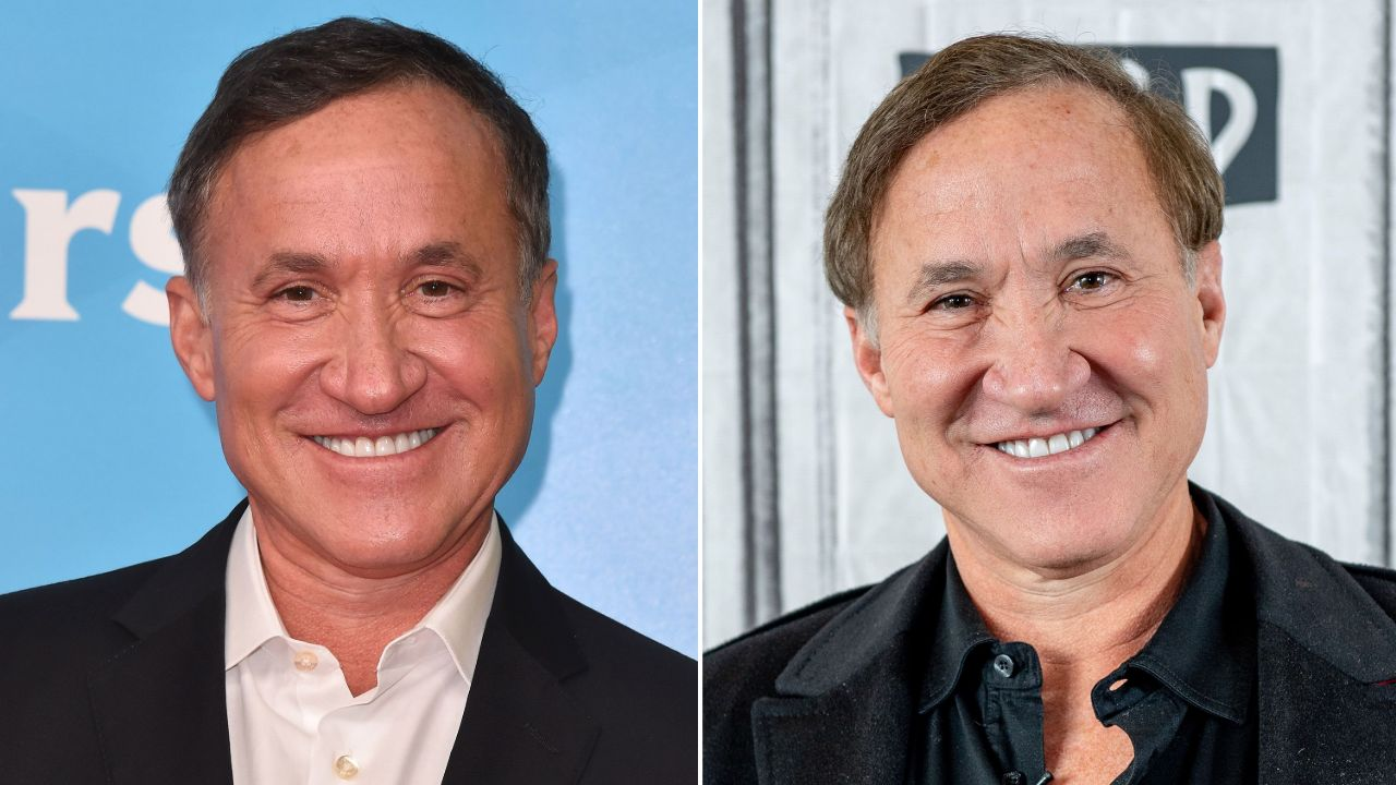 Terry Dubrow before and after plastic surgery, most notably fillers on his face.