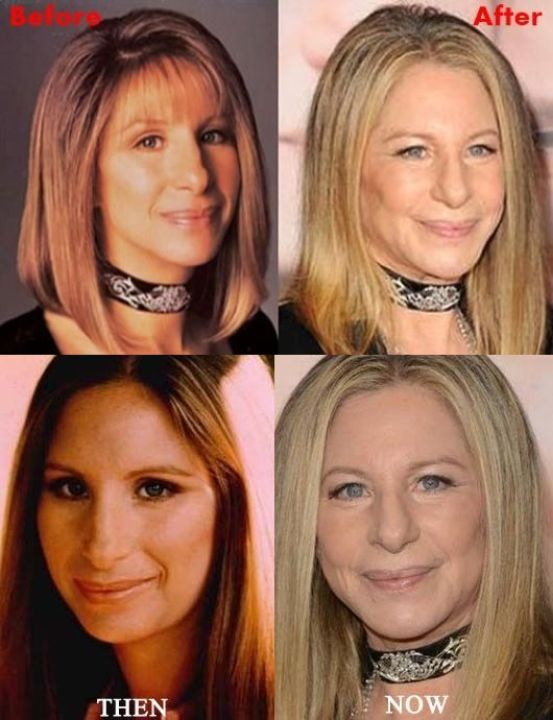 Barbra Streisand before and after alleged plastic surgery.