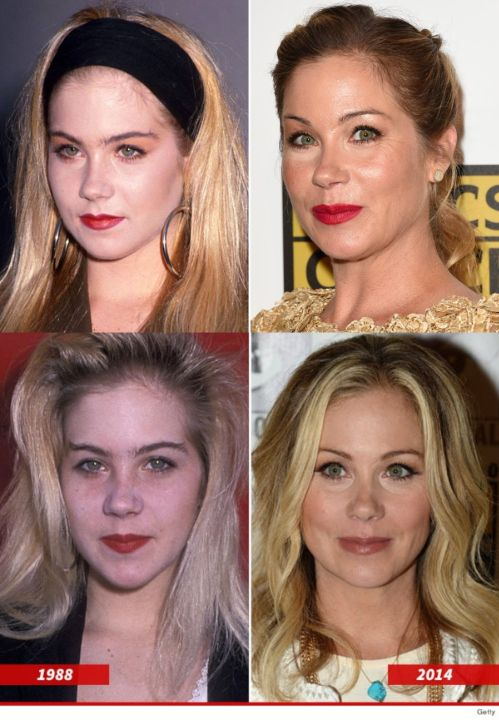 Christina Applegate before and after alleged plastic surgery.