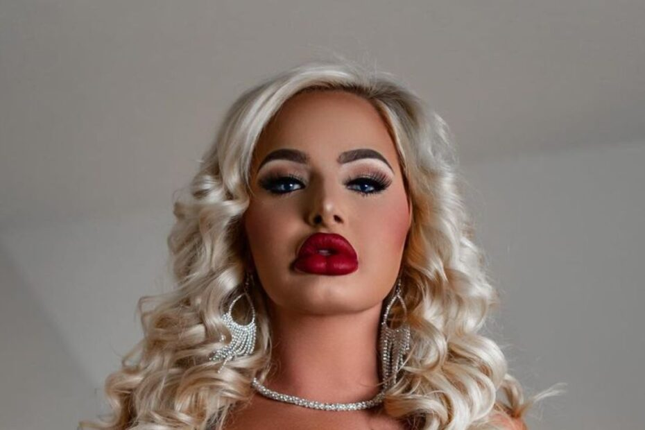 Haley's Plastic Surgery from Hooked on the Look - The Unspoken Truth!