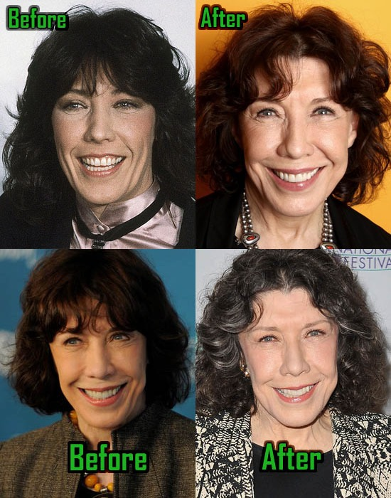 Lily Tomlin before and after alleged plastic surgery.