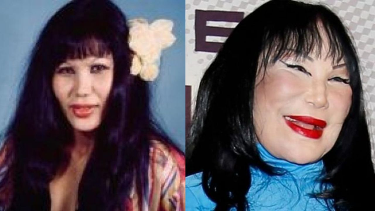 Lyn May before and after plastic surgery.