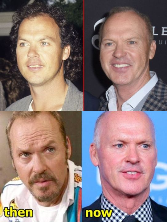 Michael Keaton before and after plastic surgery.