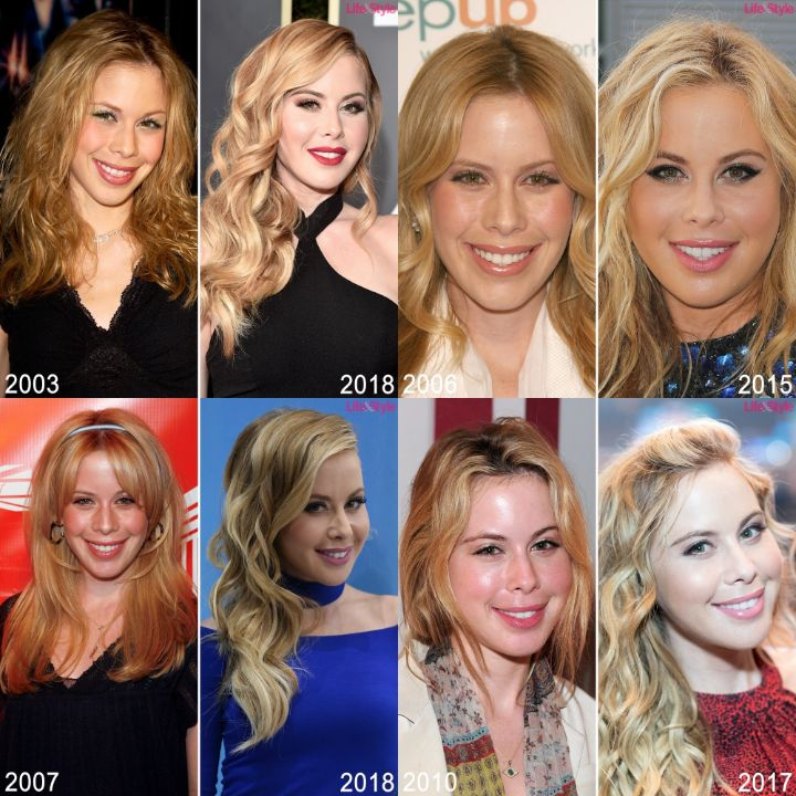 Tara Lipinski before and after alleged plastic surgery.