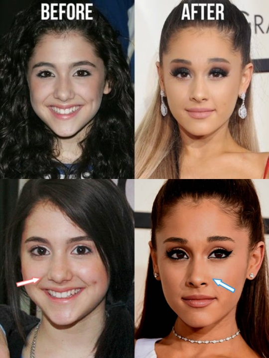 Ariana Grande before and after plastic surgery.
