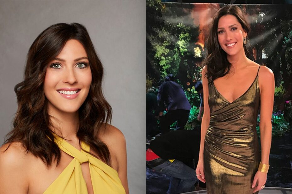 'Bachelor in Paradise' Becca Kufrin's Plastic Surgery - The Complete Breakdown!