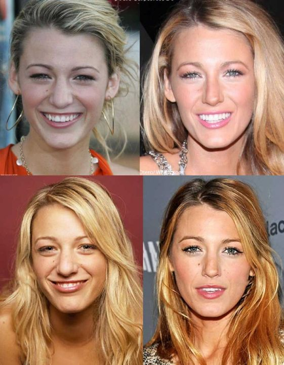 Blake Lively before and after nose job plastic surgery.