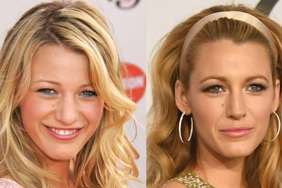 Blake Lively Before and After Nose Job Plastic Surgery - Check Out Her Old Nose on Sisterhood of the Traveling Pants