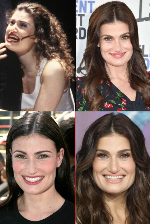 Idina Menzel before and after alleged plastic surgery.