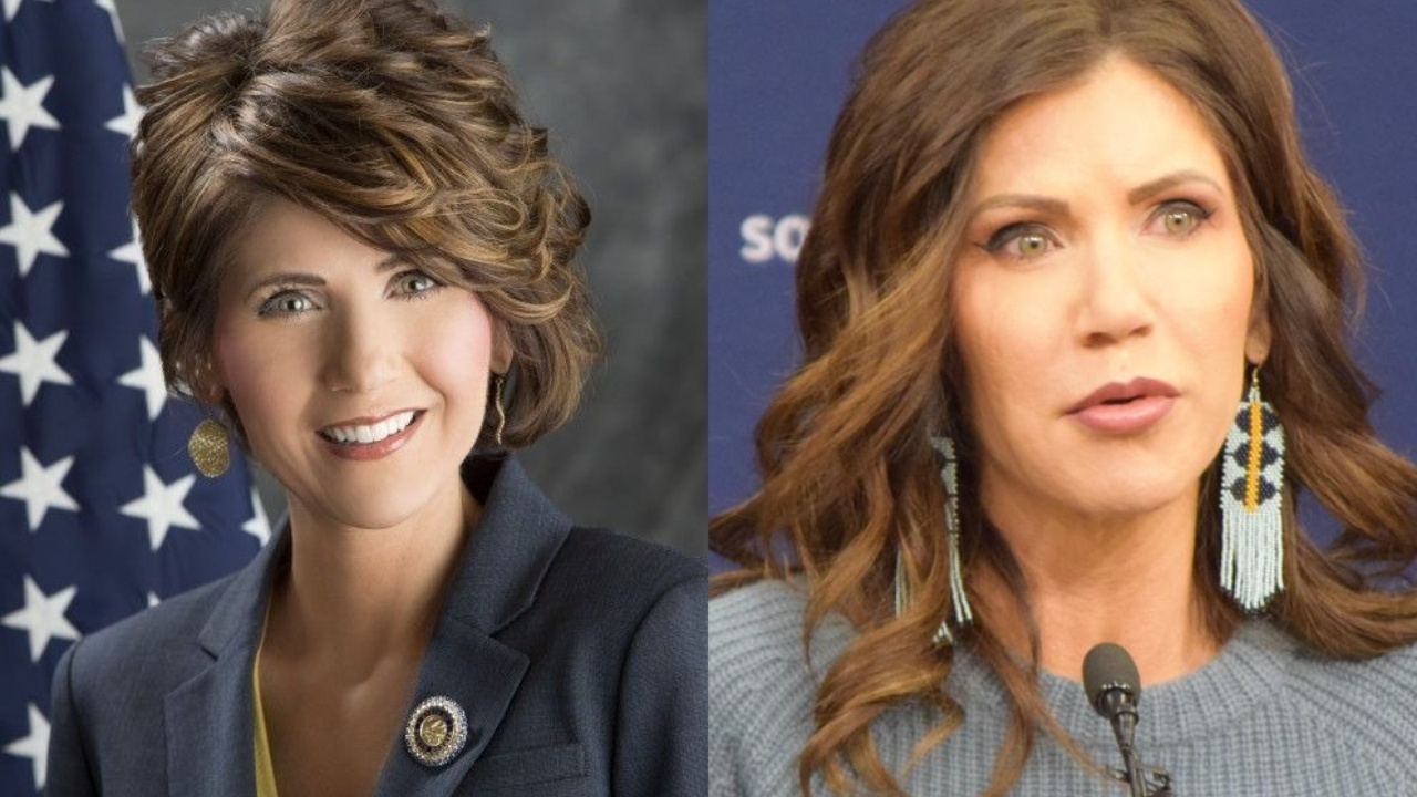 Kristi Noem before and after plastic surgery.