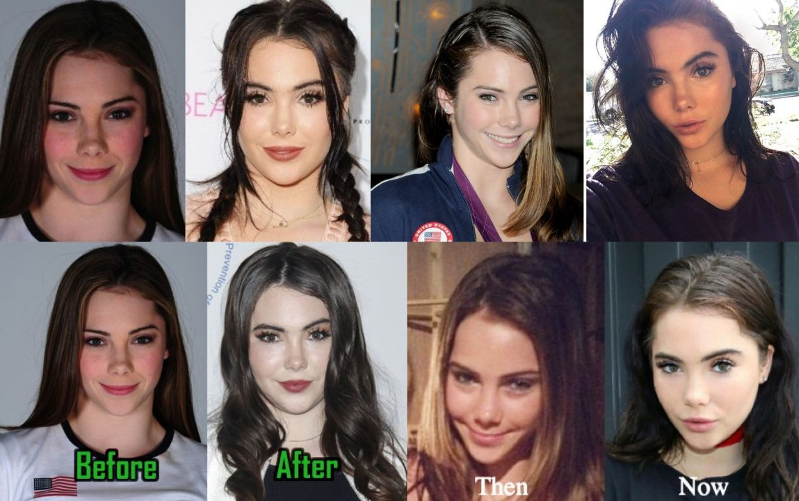 McKayla Maroney before and after plastic surgery.