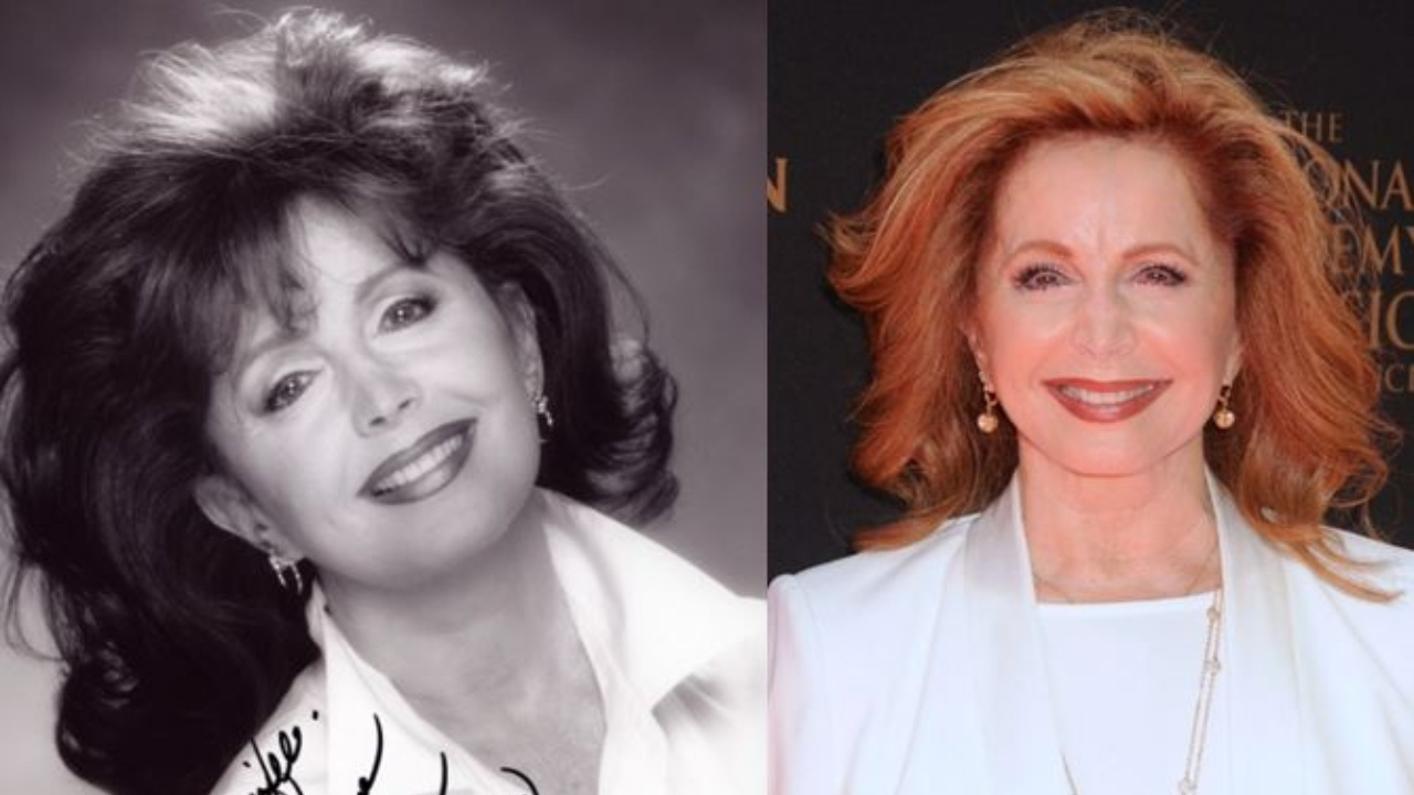 Suzanne Rogers before and after alleged plastic surgery.